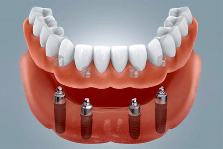 Implantatbefestigter Zahnersatz